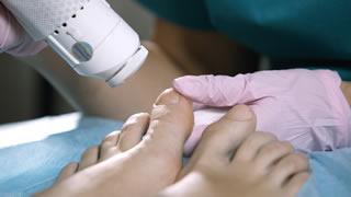 Laser Fungal Nail Treatment | Bishops Cleeve Cheltenham