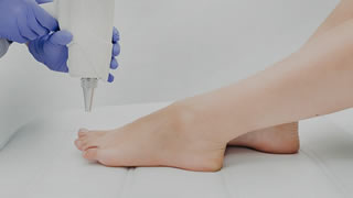 Laser Fungal Nail Treatment | Bishops Cleeve Cheltenham