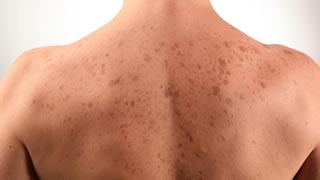 Laser Skin Pigment Removal | Bishops Cleeve Cheltenham
