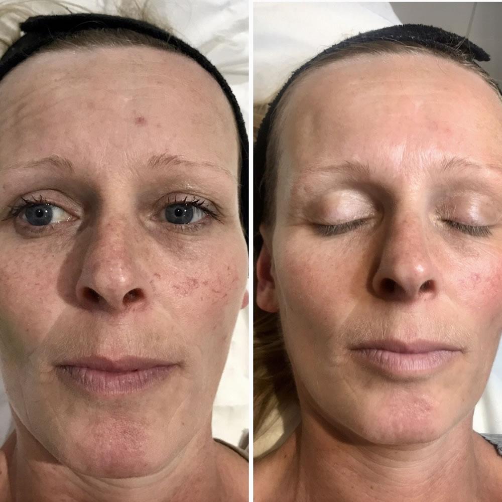 Laser Skin Rejuvenation | Skin Perfection Cheltenham