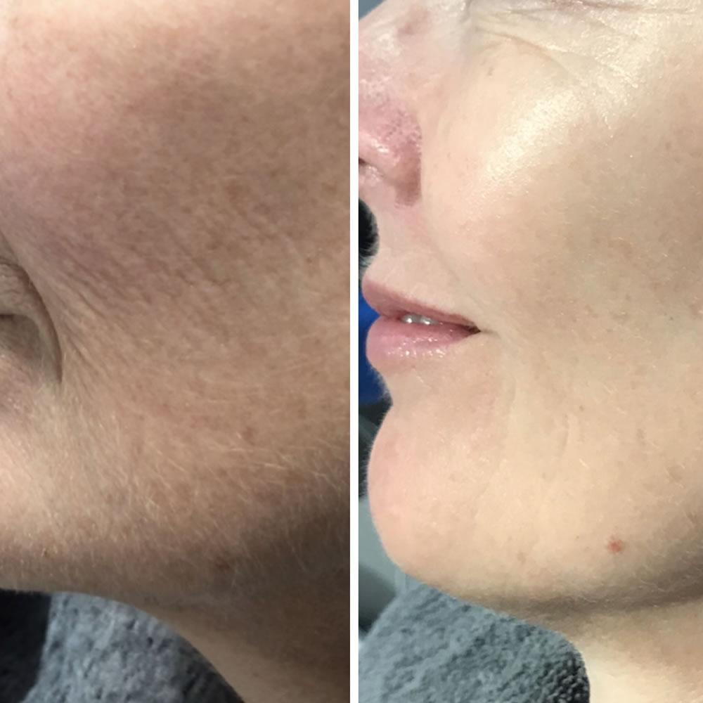 Laser Photo Rejuvenation | Skin Perfection Cheltenham