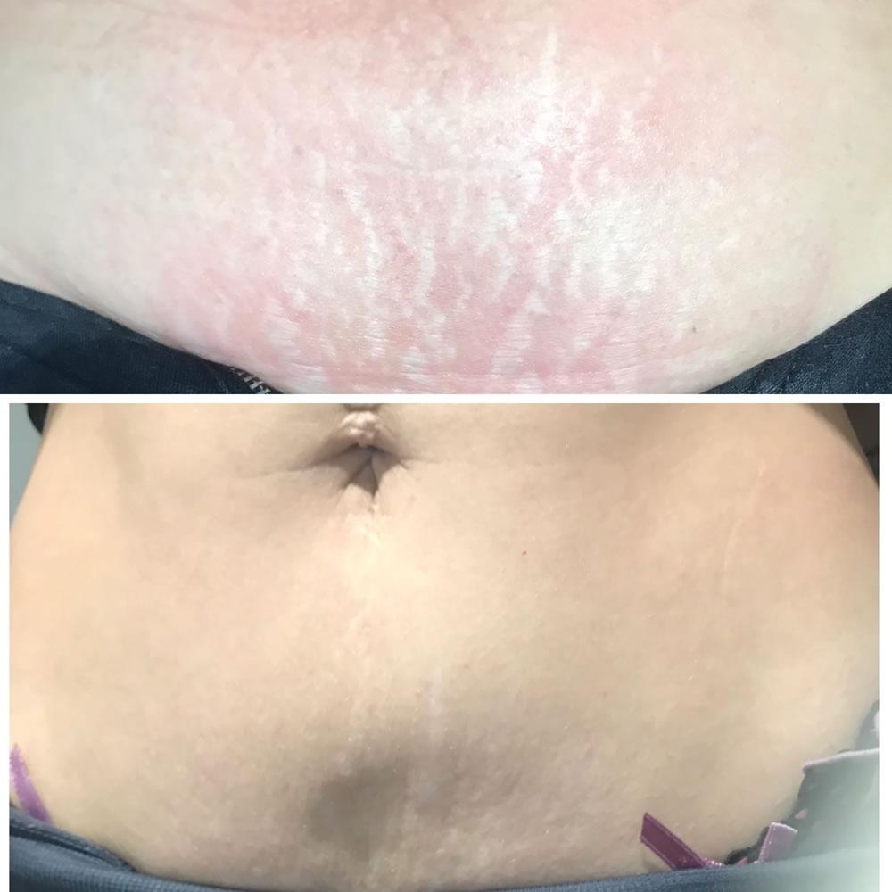 Plasma Skin Tightening | Skin Perfection Cheltenham