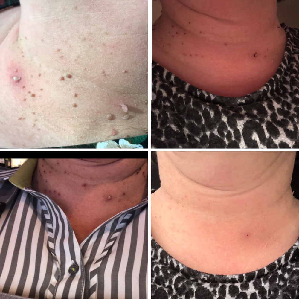 Skin Tag Removal | Skin Perfection Cheltenham