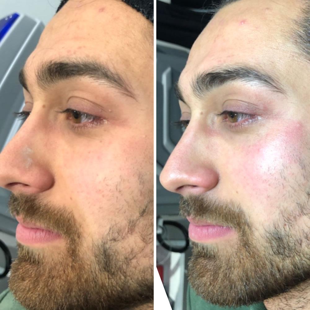 Skinbase Award Winning Microdermabrasion  | Skin Perfection Cheltenham