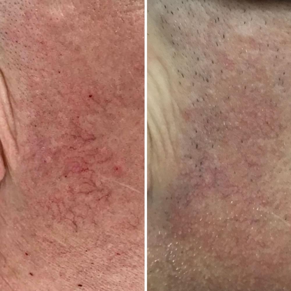 Thread Vein Removal | Skin Perfection Cheltenham