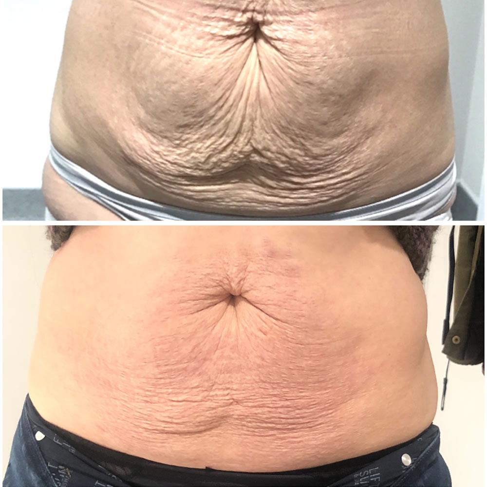 Plasma Tummy Tuck | Skin Perfection Cheltenham